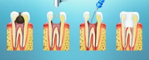 Вылечить кисту в зубе в домашних условиях