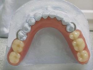 Пластиночные протезы протезирование зубов