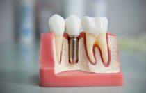 макет зубов_Дентера